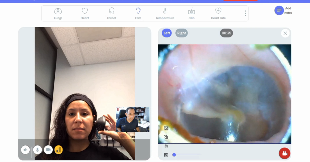 Tele-assistive technology otoscope stethoscope camera physician