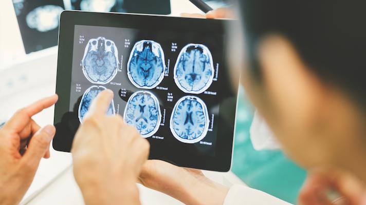 NIH brain neural dust