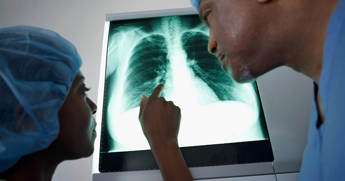 Doctors examine lung a lung X-ray.