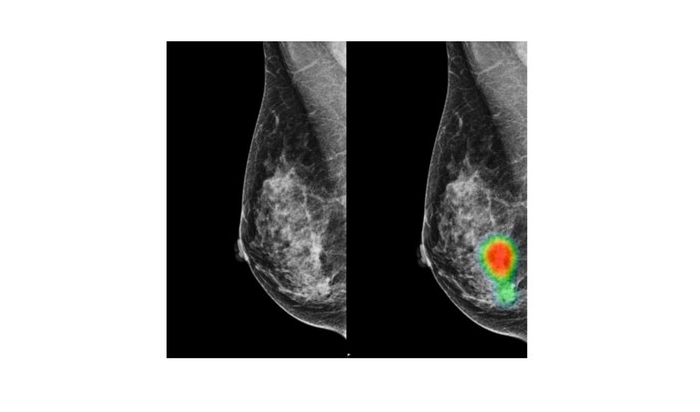 AI helps radiologists improve accuracy in breast cancer detection with lesser recalls