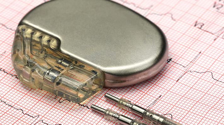 Pacemaker device security audit finds 8,600 flaws, some potentially deadly