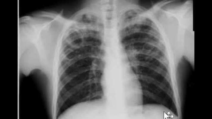 AI detects tuberculosis