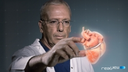 Docs were able to manipulate the projected 3D heart by touching the holograph.