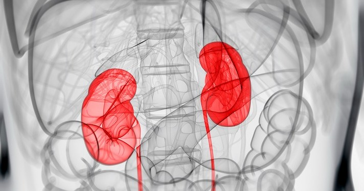 Kidneys showing up as red on an otherwise black-and-white X-ray