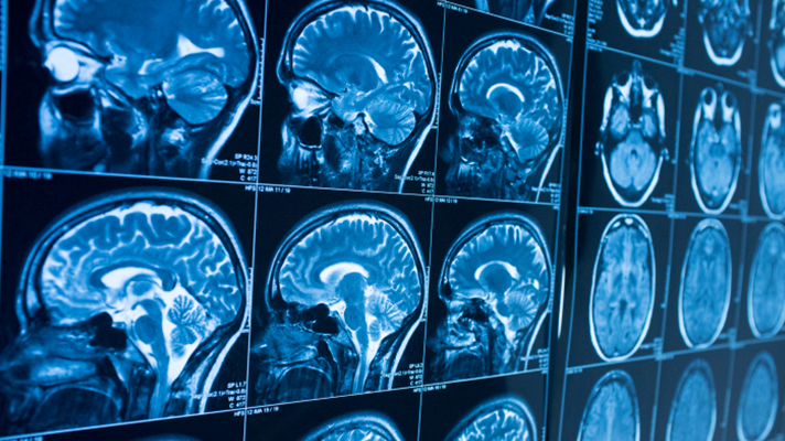 Microsoft study traumatic brain injuries