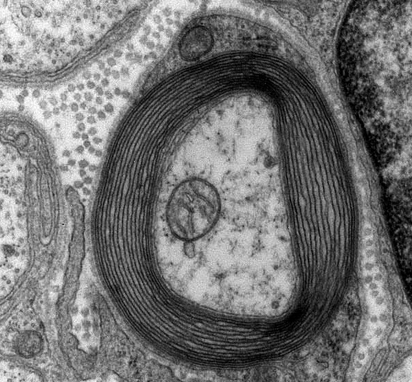 neuron up close