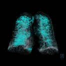 Radiology, imaging, artificial intelligence, Siemens