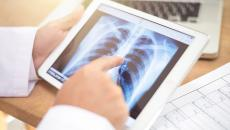 X-ray image on tablet.