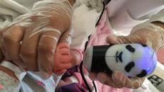 Infant bioprint tool used on infant in hospital