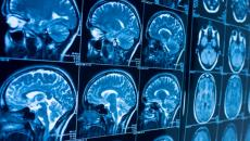 A stock image of brain scans