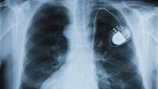Medical device threats are real, risk to patient safety