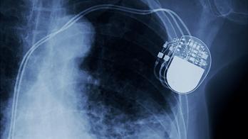 cardiac implant xray
