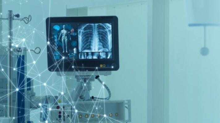 An X-ray machine display