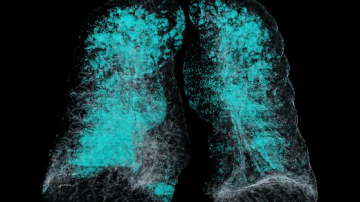 Radiology, imaging, artificial intelligence, Siemens