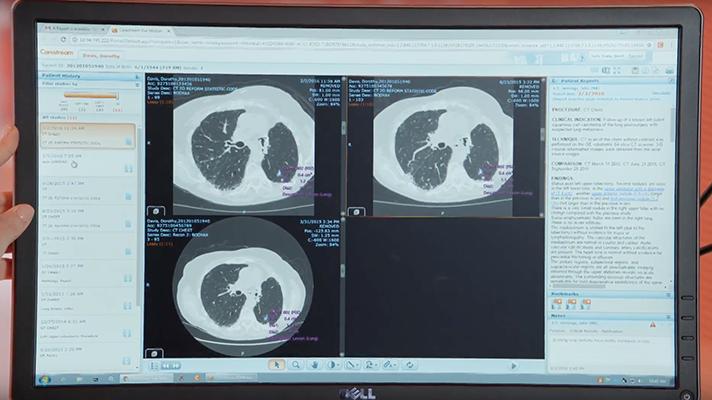 multimedia radiology reports