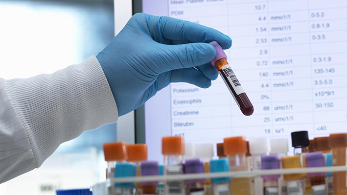 Hackers breached one of the largest clinical laboratories in US in July.